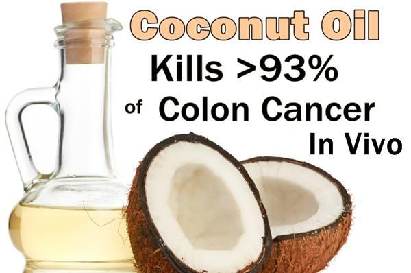 coconut-oil-kills-93-of-colon-cancer-cells-in-vivo-featured