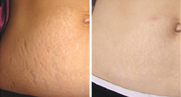 get-rid-of-stretch-marks-naturally