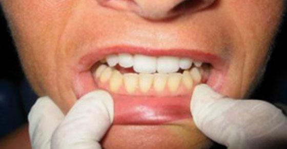 Como blanquear mis dientes en casa yahoo dating 5