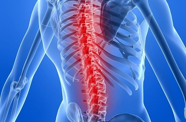back-spine-pain-relief-try-this-simple-and-100-natural-recipe