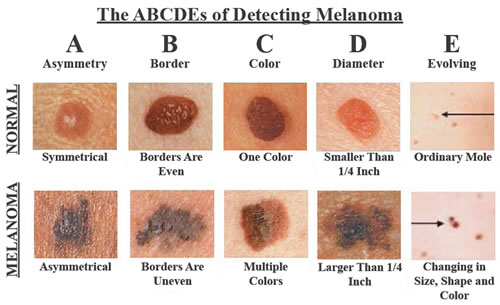 how-to-recognize-skin-cancer-this-could-save-your-life-featured