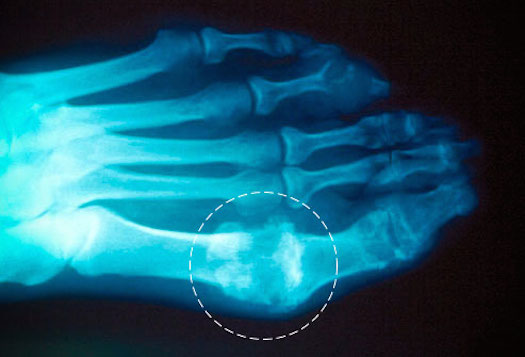how-to-rid-your-joints-of-uric-acid-crystals-gout-joint-pain