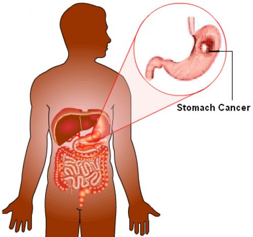 this-type-of-cancer-spread-really-fast-but-many-think-that-is-only-stomach-acid1
