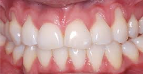 Swollen Tooth Home Remedies