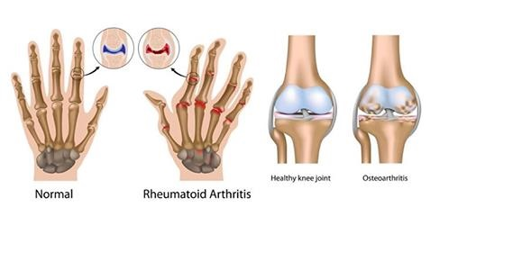 this-treatment-is-considered-as-the-magical-cure-for-arthritis