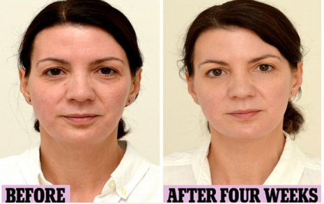 woman-drinks-a-gallon-of-water-a-day-for-4-weeks-and-the-picture-results-are-shocking1
