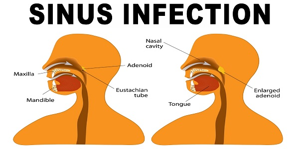 Home Remedies For Sinus Infection Sore Throat